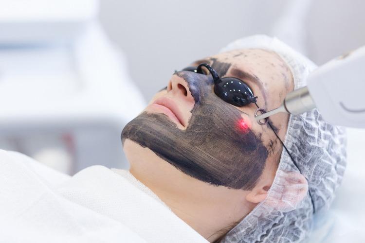 công nghệ tái tạo da bằng laser